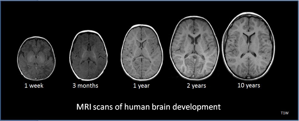 Filehuman brain development 1wk 3mo 1yr 2yr 10yr t1w mrig filehuman brain development 1wk 3mo 1yr 2yr 10yr t1w ccuart Image collections