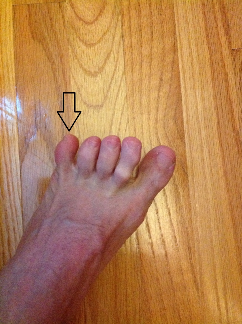 los dedos de los pies tienen nombre