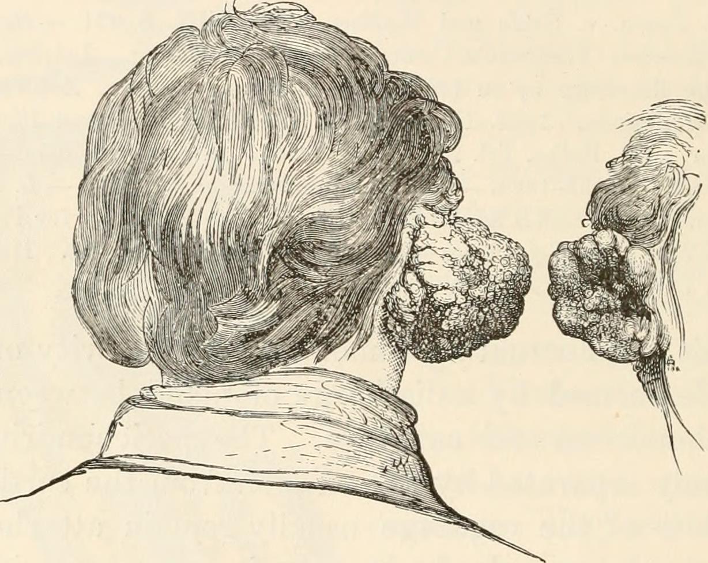 File:The pathological anatomy of the ear (1878) (14776204185).jpg ...