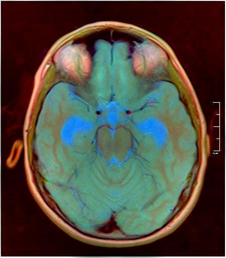 Brain MRI 0015 06.jpg