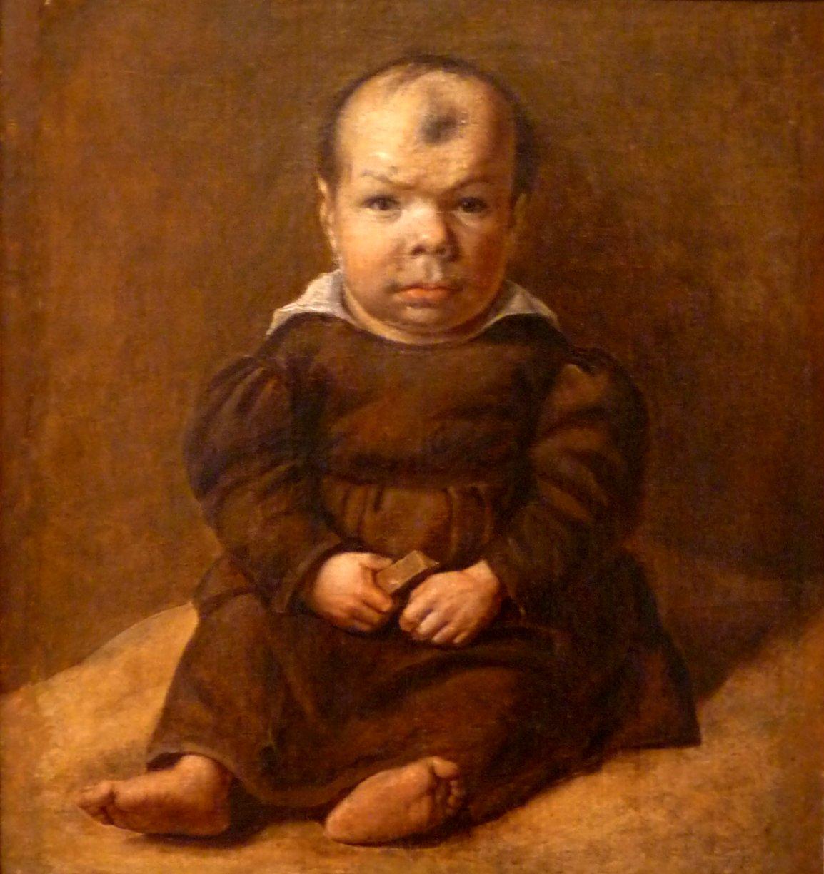 Dwarf midget definition