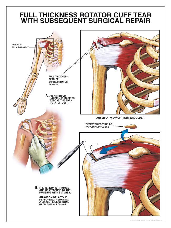 Rotator Cuff Injury and Dislocated and Separated Shoulder