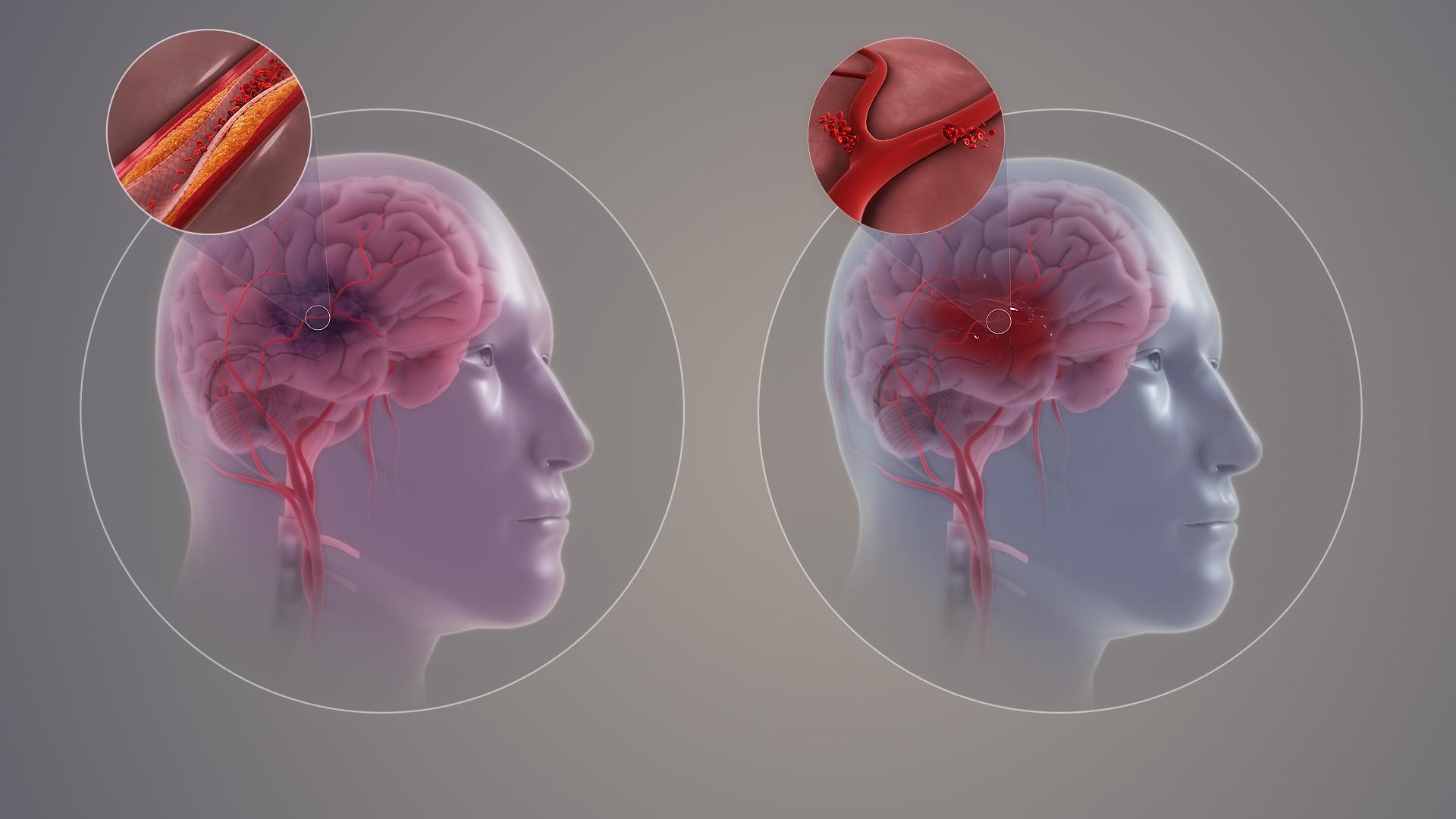 Untersuchung bei einem Schlaganfall - Bluttests zur Diagnose eines Schlaganfalls