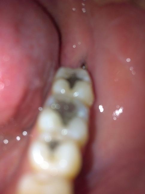 White tooth hole White stuff