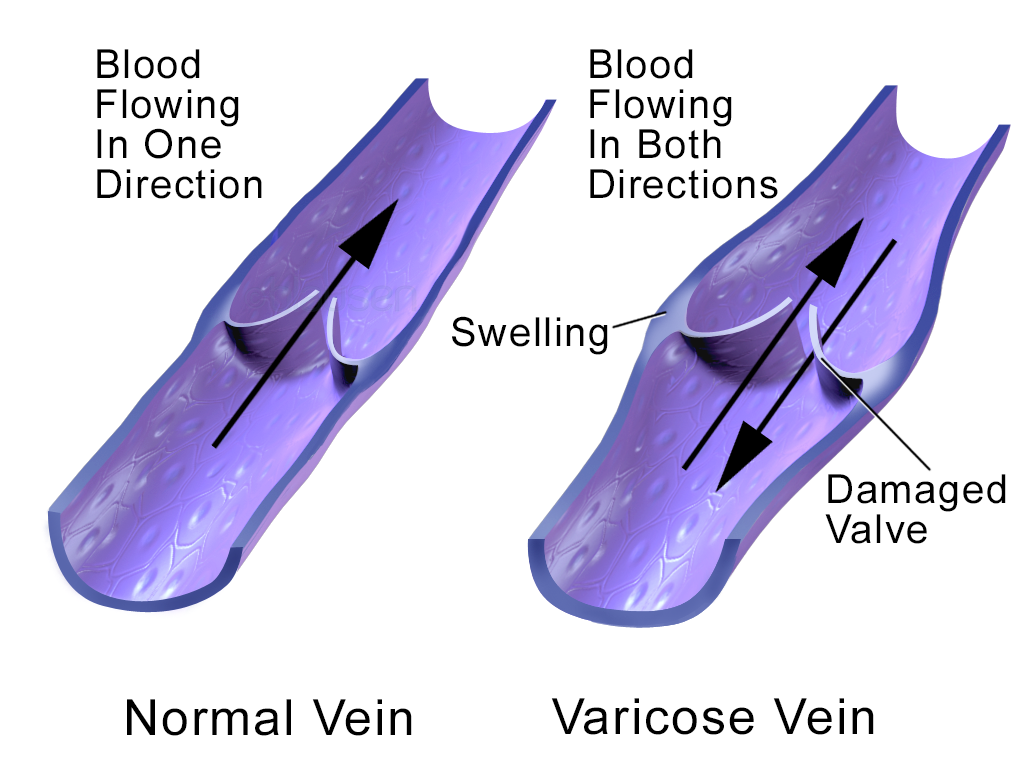 https://upload.wikimedia.org/wikipedia/commons/8/86/Blausen_0891_VaricoseVein.png