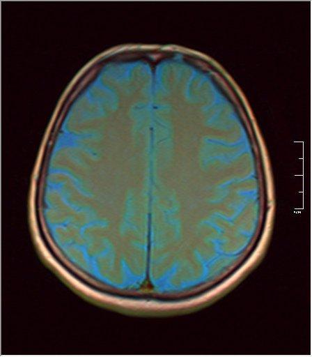 Brain MRI 0213 05.jpg
