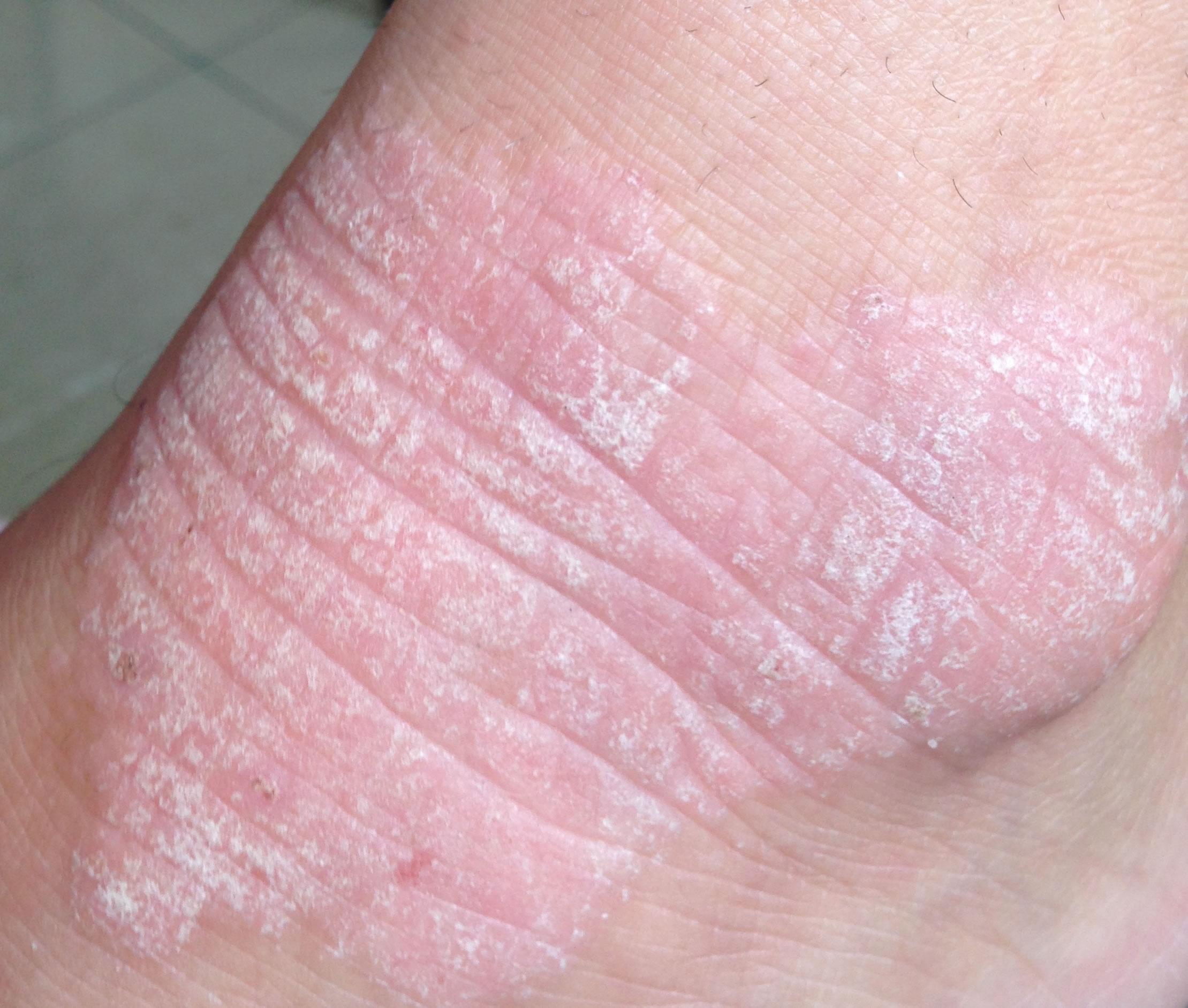 Bueno la crema a atopicheskom la dermatitis