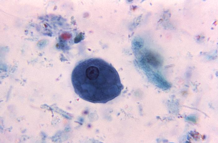 entamoeba histolytica slide - photo #49