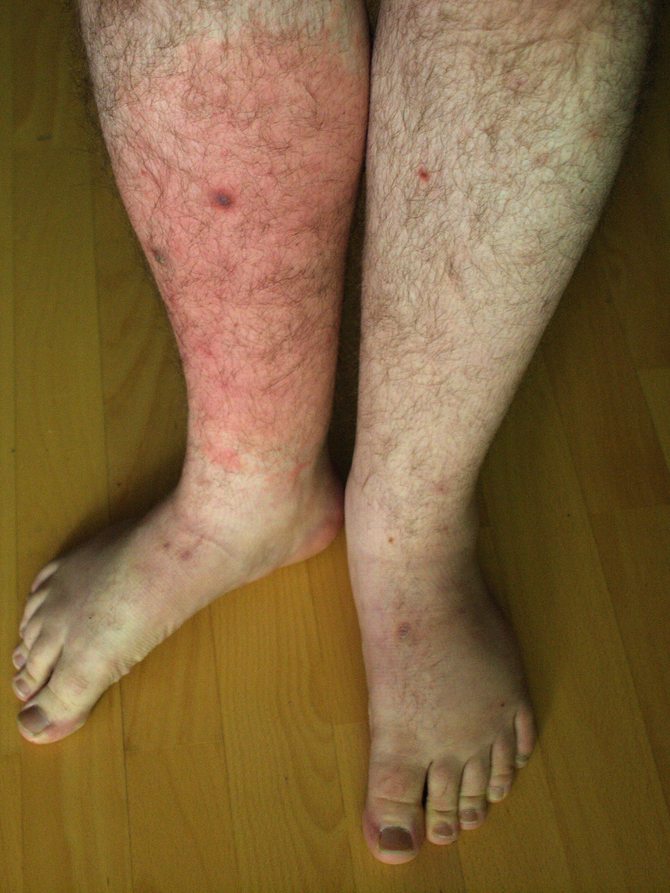 How to treat erysipelatous foot inflammation, face, hands, lower leg( disease of erysipelas)