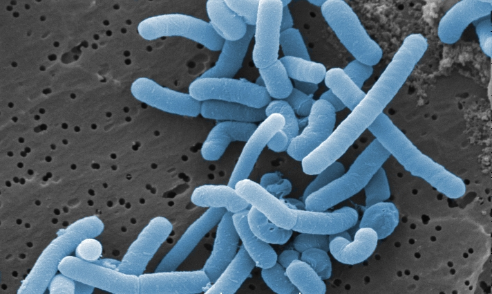 Lactobacillus Paracasei Market 2018 by Growth Rate of XXX%, Manufactures, Types and Regions