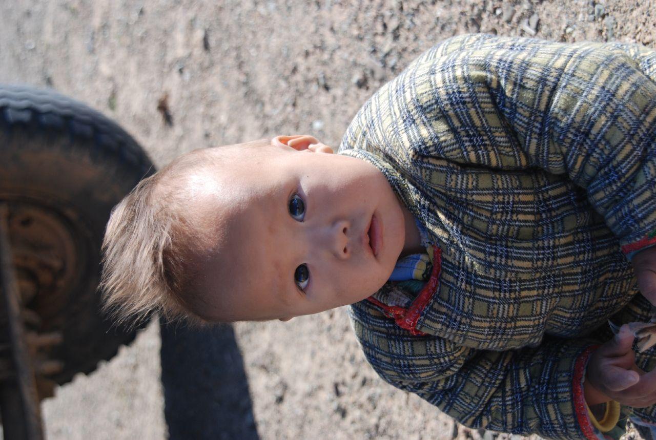 Mongolian Spots On Babies - Circle of Moms