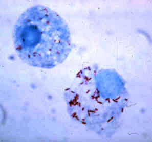 <i>Rickettsia</i> type of bacteria that causes typhus, among other diseases