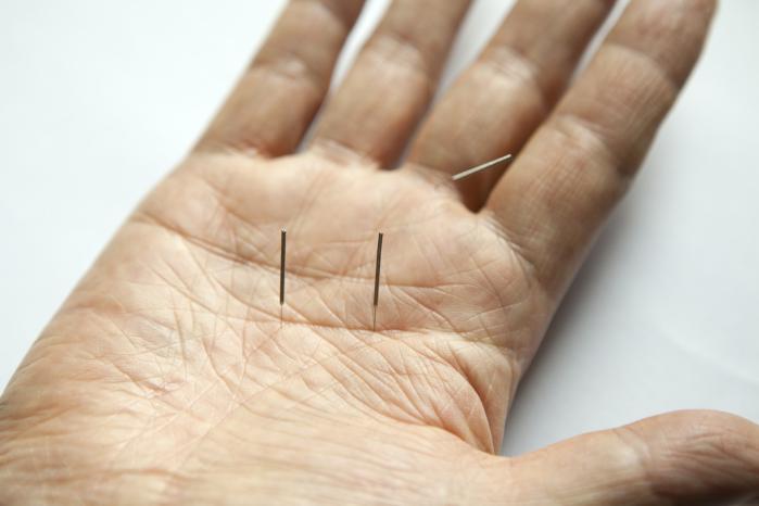 Use of acupuncture analgesia essay