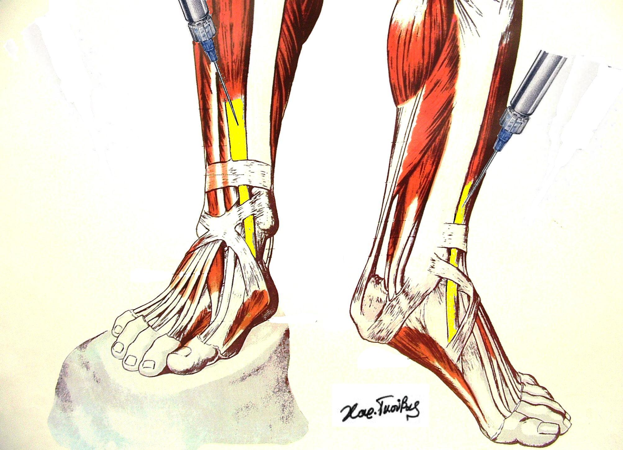 File:Tibialis Anterior injection.jpg - Wikimedia Commons