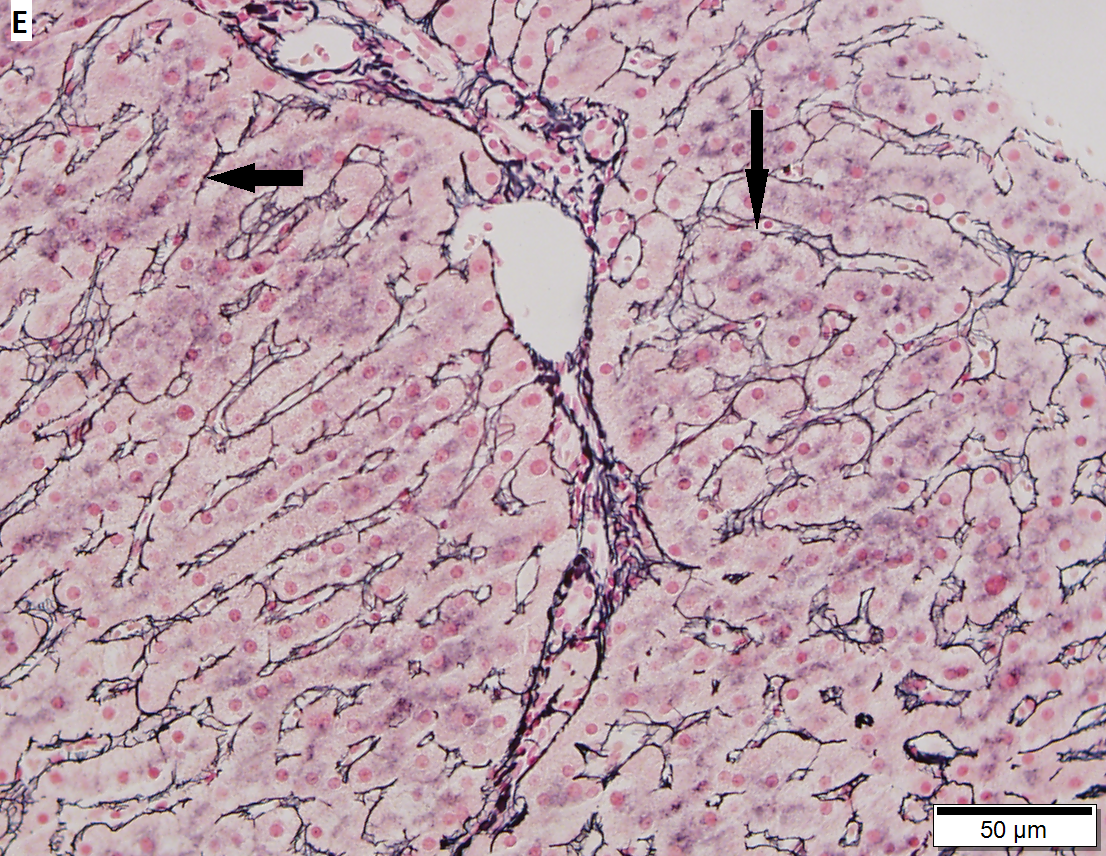 Focal hepatocyte necrosis and isolated granuloma, drug induced liver injury (DILI)