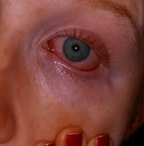 causes of conjunctivitis Care guide for conjunctivitis includes: possible causes, signs and symptoms, standard treatment options and means of care and support.