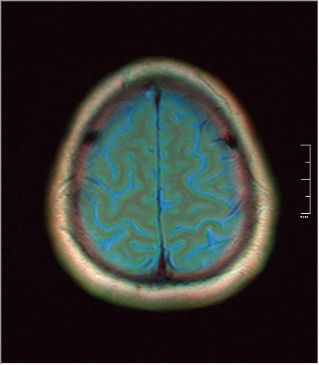 Brain MRI 0077 02.jpg