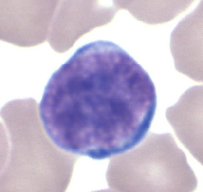 Fil:Lymphocyte GL.jpg