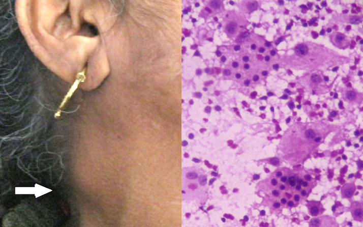 "rosai dorfman disease with cervical lymphadenopathy Sinus histiocytosis with massive lymphadenopathy or ""rosai-dorfman""s syndrome is a rare benign disease of unknown etiology this condition generally presents as massive bilateral cervical lymphadenopathy."