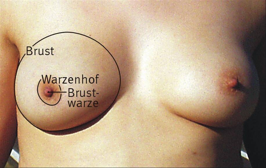 Fett in die Brust injiziert