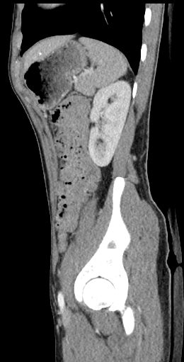 CT of a normal abdomen and pelvis, sagittal plane 128.png