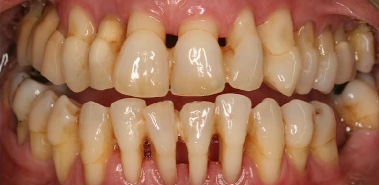 Conservative_dentistry_encias.png
