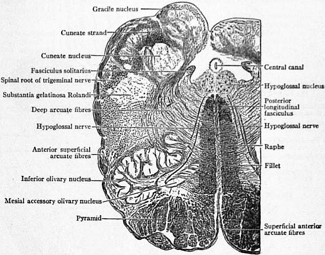 EB1911 Brain Fig. 4-Transverse Section of Medulla.jpg