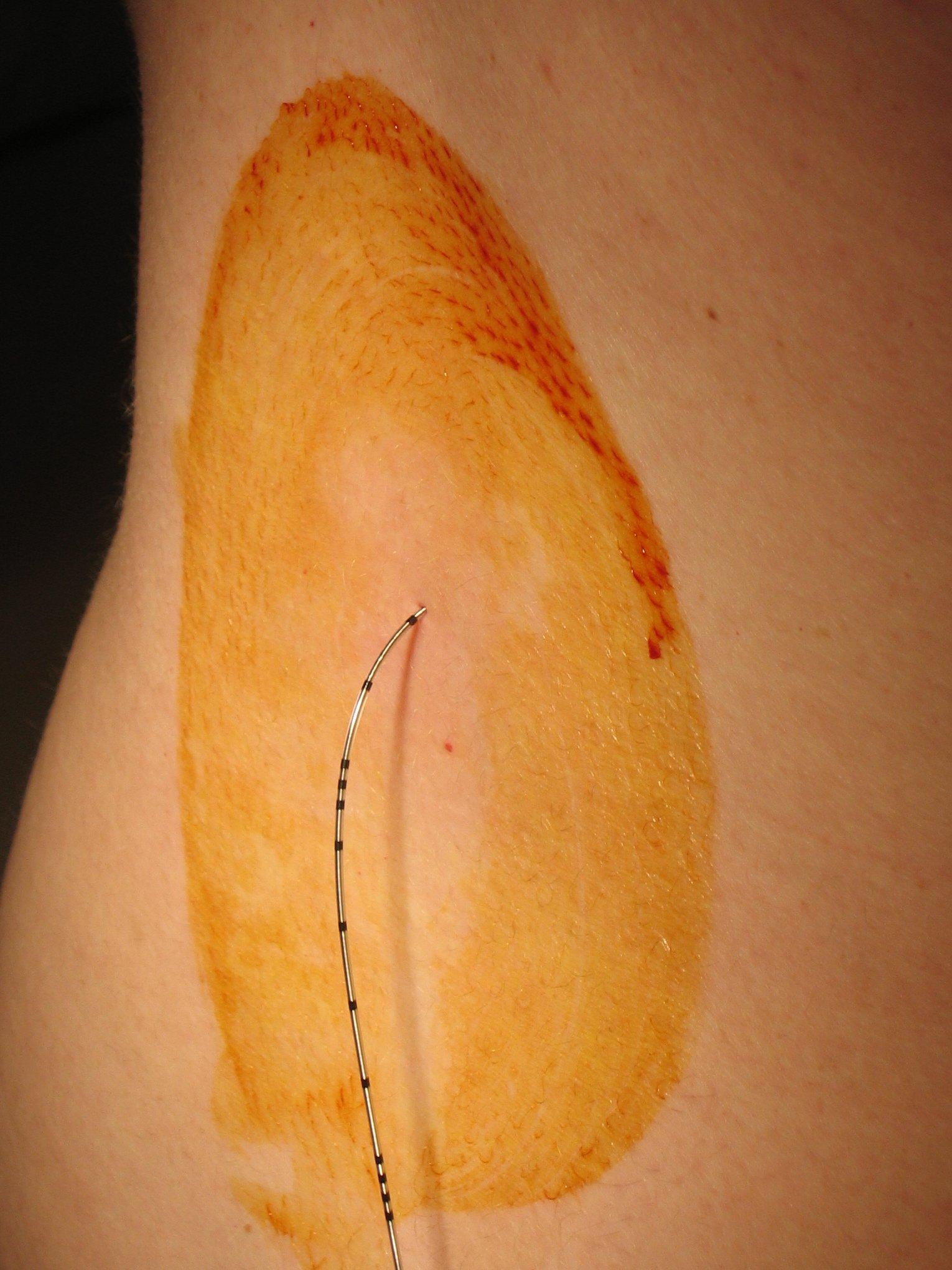 Dura epidural anestesia el en cuanto la cuerpo tiempo