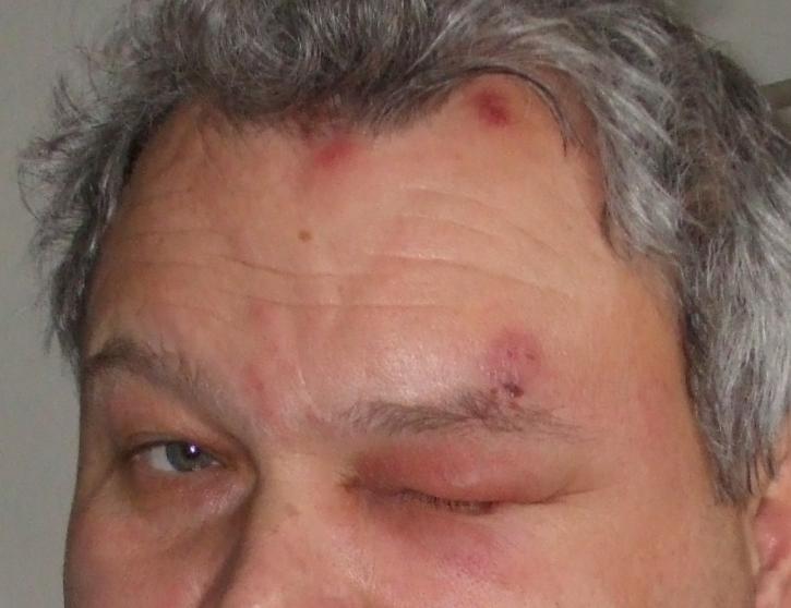 File:Herpes Zoster im Augenbereich.JPG