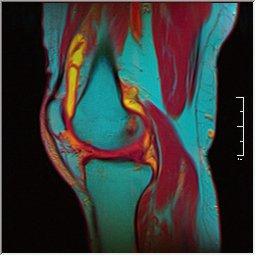Knee MRI 0025 08 pdfs t1 t2 59f.jpg
