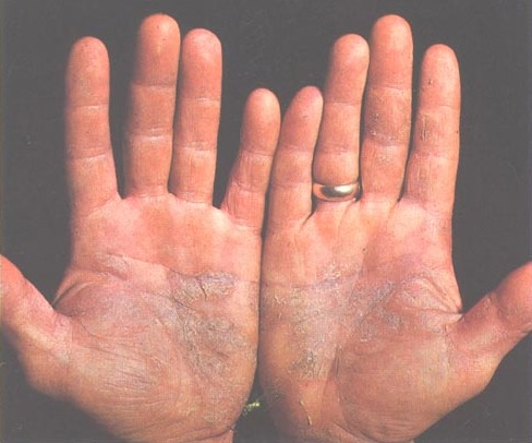 La psoriasis no existe el foro la crema el alba