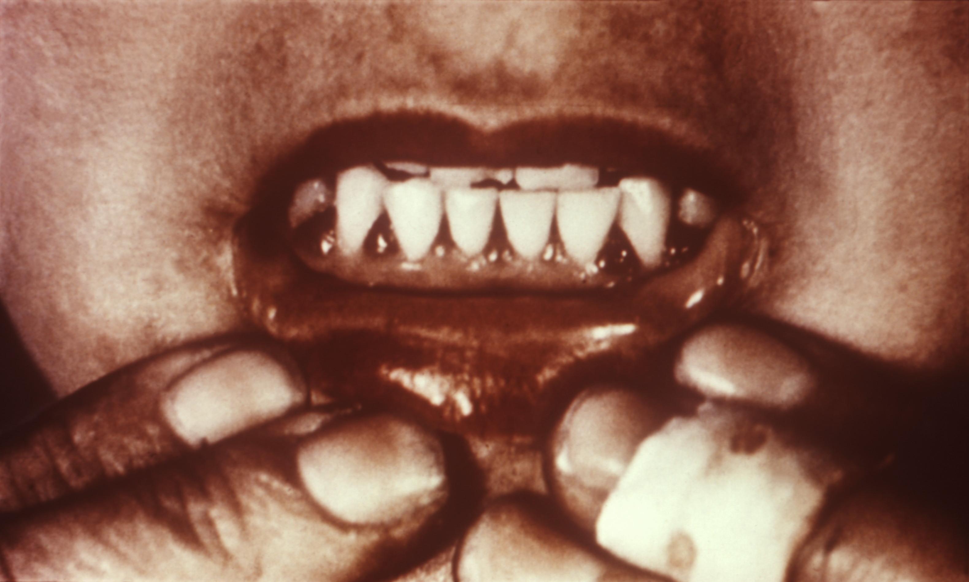 Zahnfleischbluten bei Skorbut. Bild: wikimedia.org/PD/ CDCP