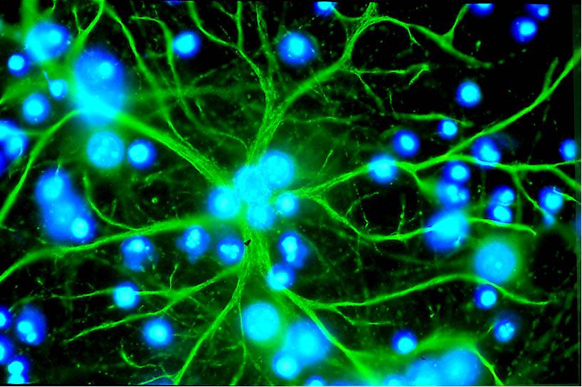 Астроцит (окрашен зелёным) в клеточной культуре