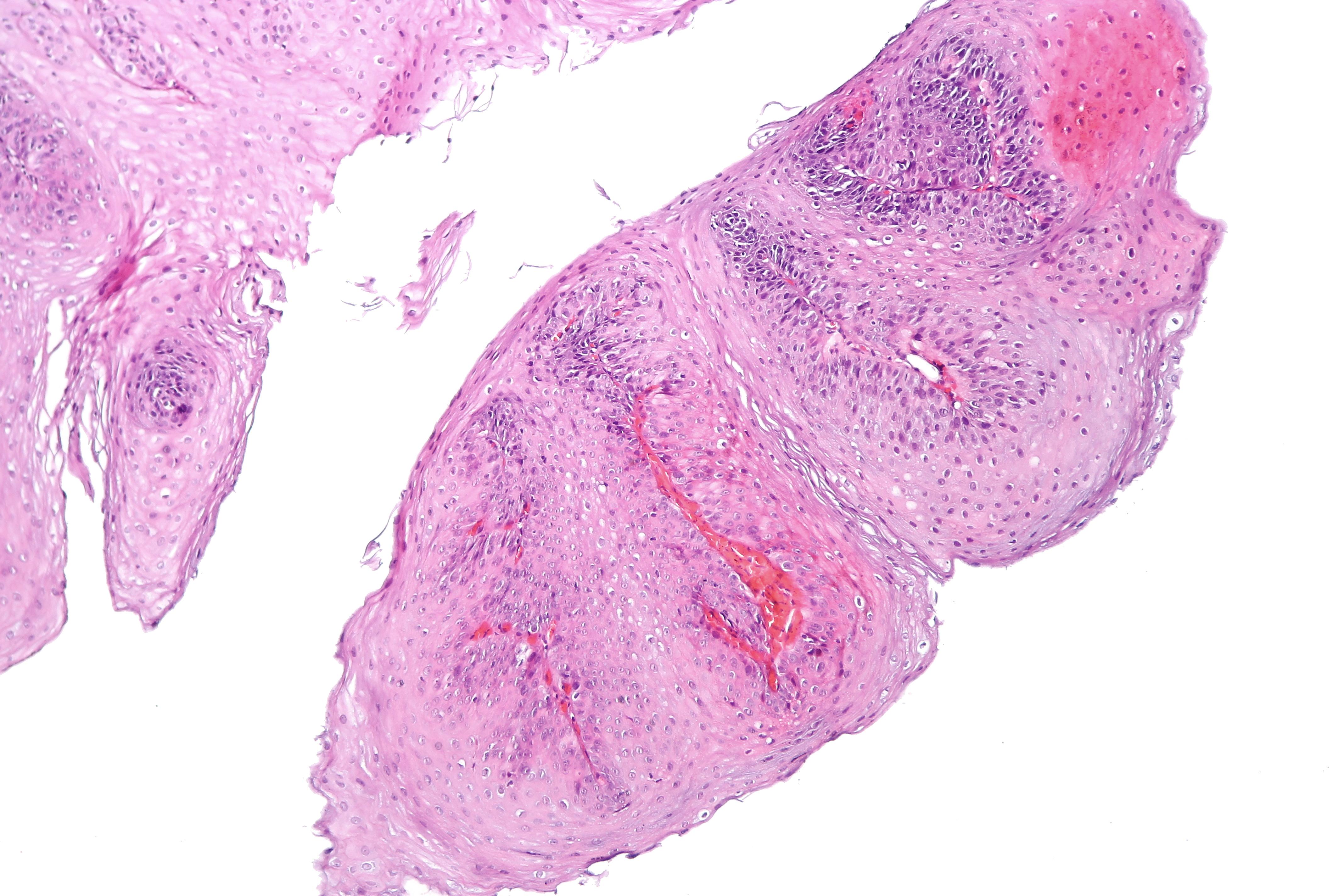 esophageal squamous papillomatosis