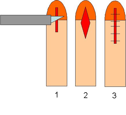 Frenulum Breve - Entfernung vs Verlängerung? - Onmeda-Forum