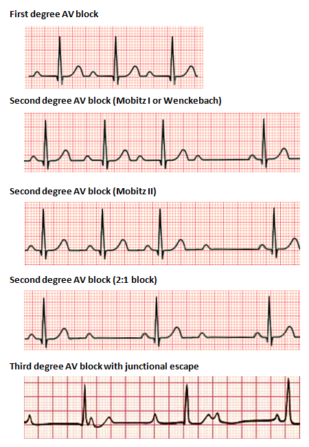 Types Of Heart Block  2 1 Degree