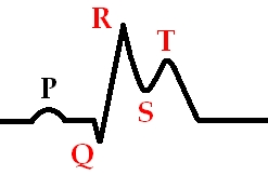 Стадия развивающегося инфаркта миокарда