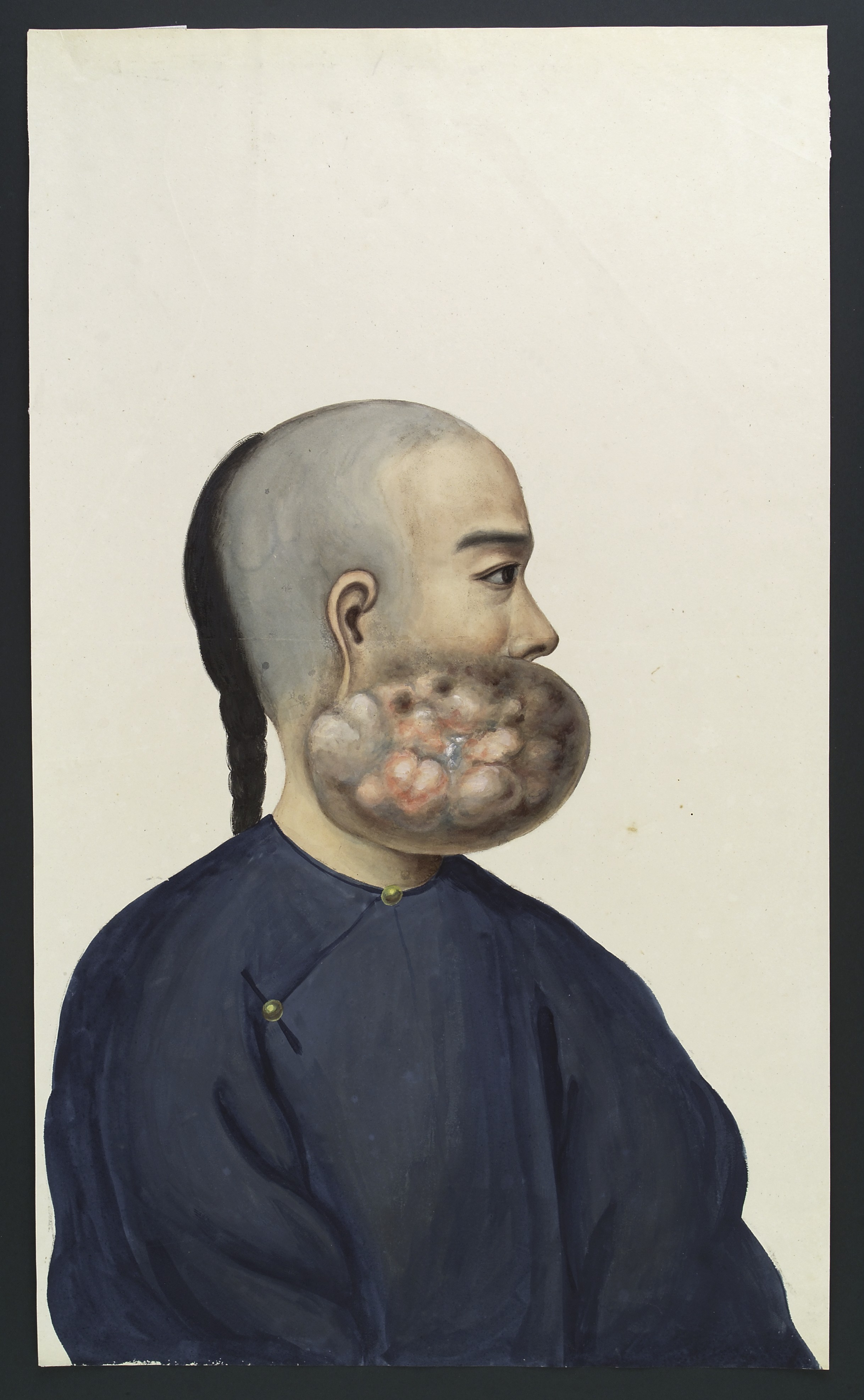 File A Chinese Man With A Tumour On The Right Side Of His
