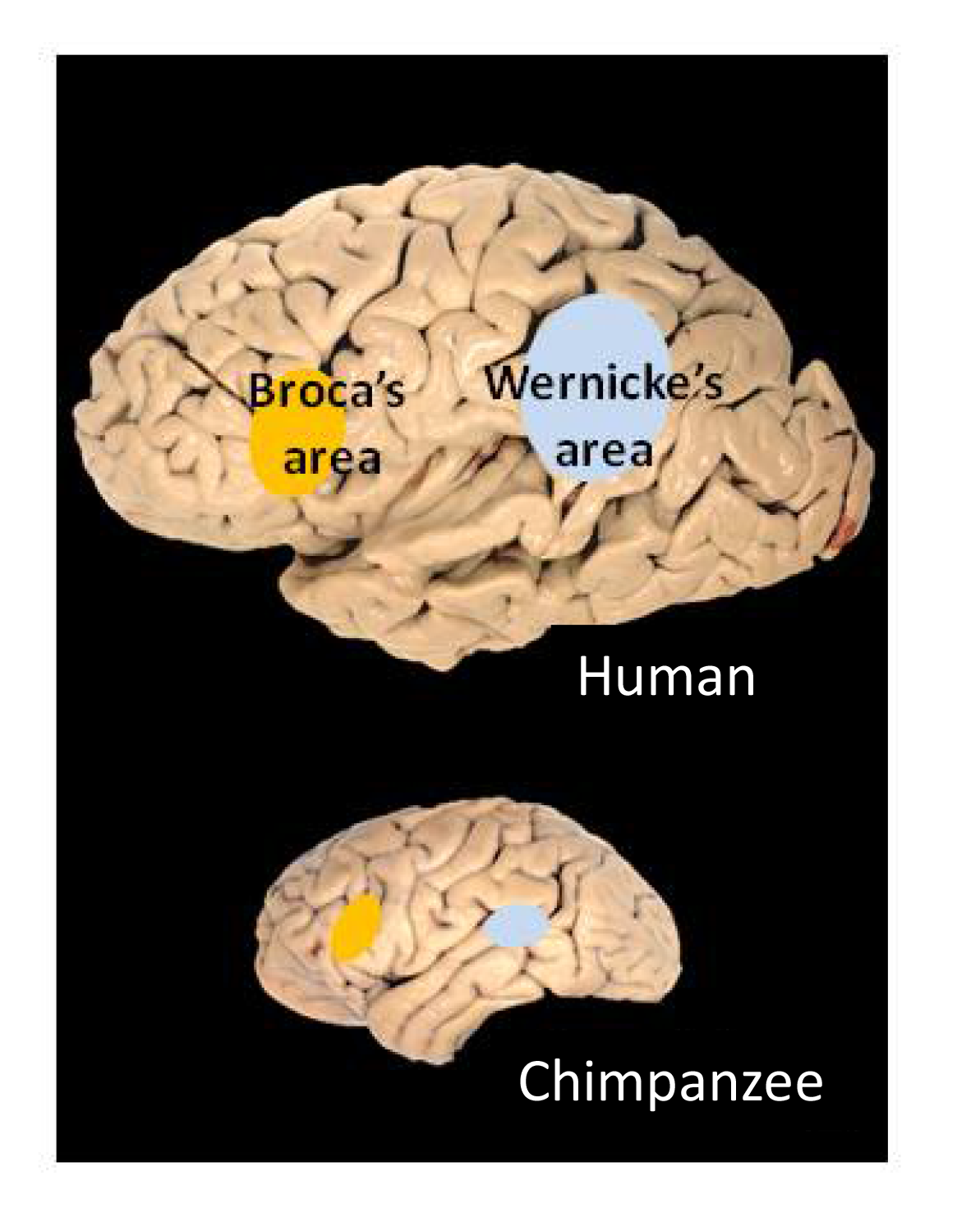 File:Broca's and Wernicke's areas.png - Wikimedia Commons