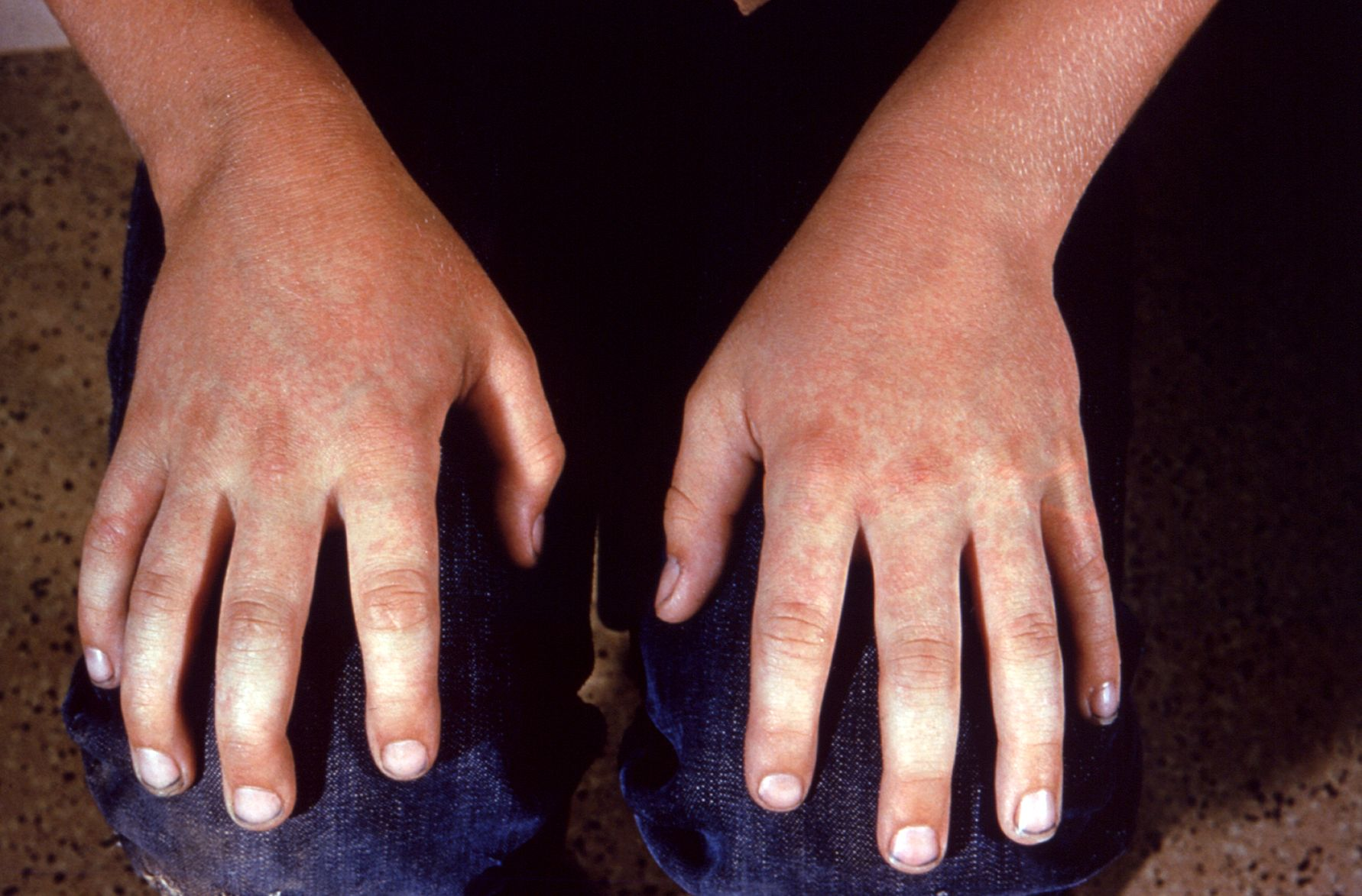 File:Fifth disease symptoms.jpg - Wikimedia Commons