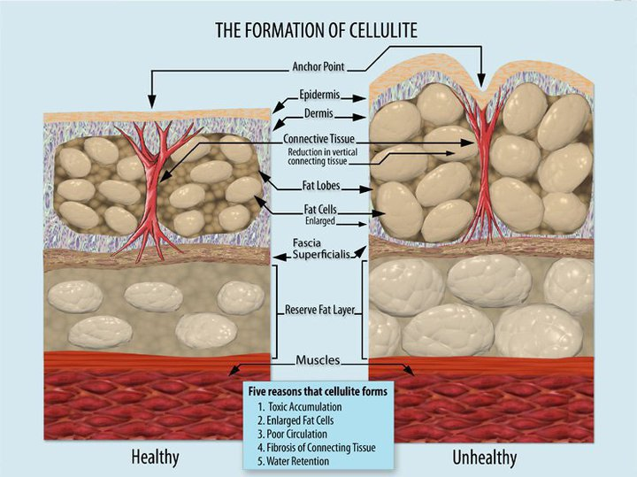 cellulite build up