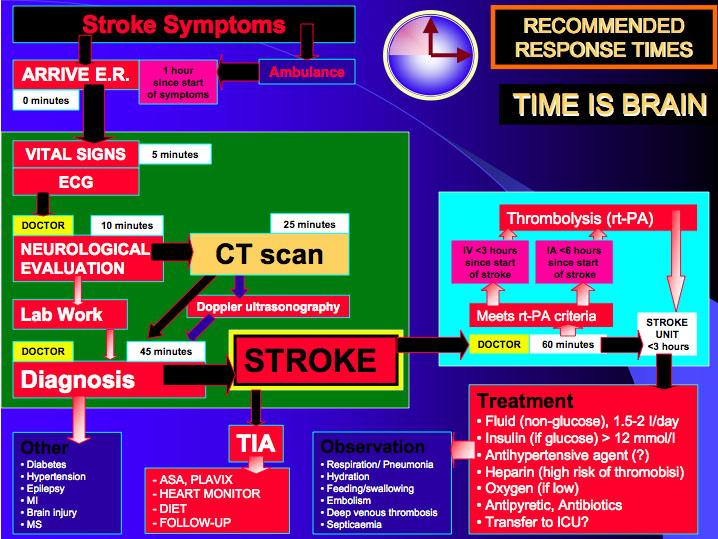 Stroke response times