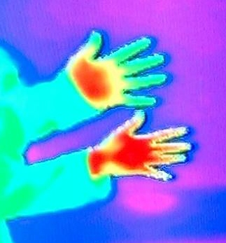 An image taken by a thermographic camera. The top hand belongs to a person who suffers from Raynaud's, the bottom hand does not. Red indicates a heat signature whilst green indicates little/no heat.