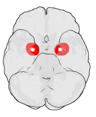 Amygdala almond-shaped group of neurons in the medial temporal lobes of the brain which plays a central role in the processing and memory of emotions, especially fear