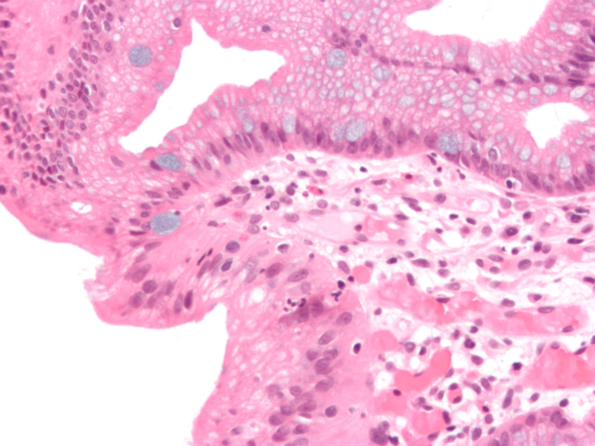Image Result For Lung Cancer Risk