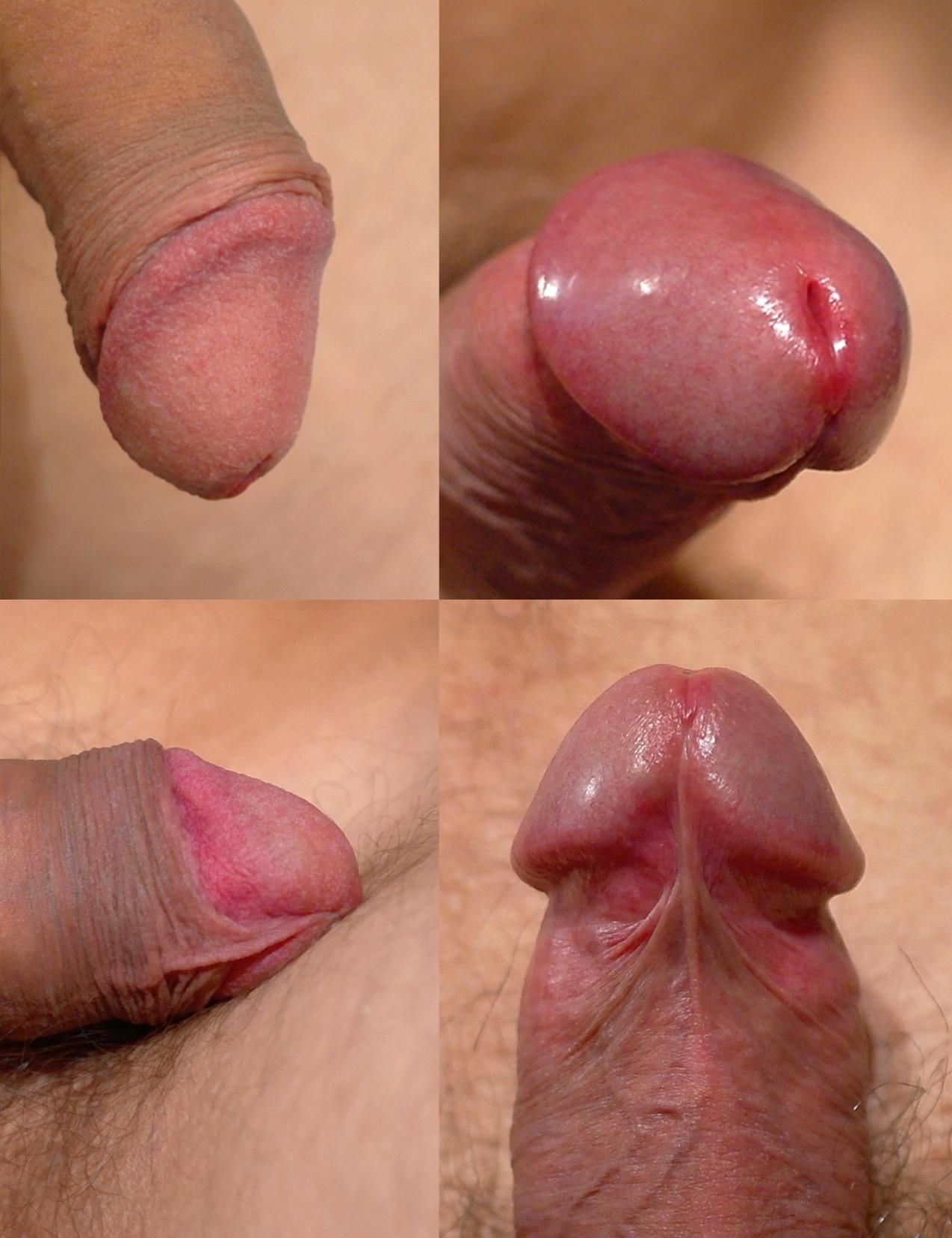 Simosis of the penis