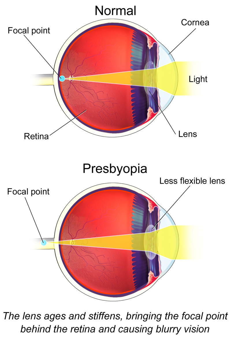 A scheme of an eye with presbyopia