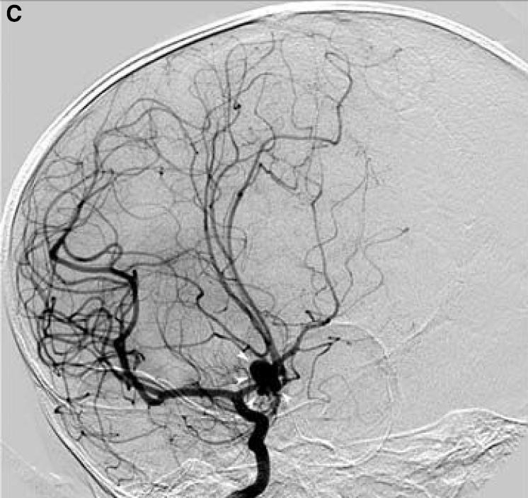 Aneurisma cerebral cerebral doença