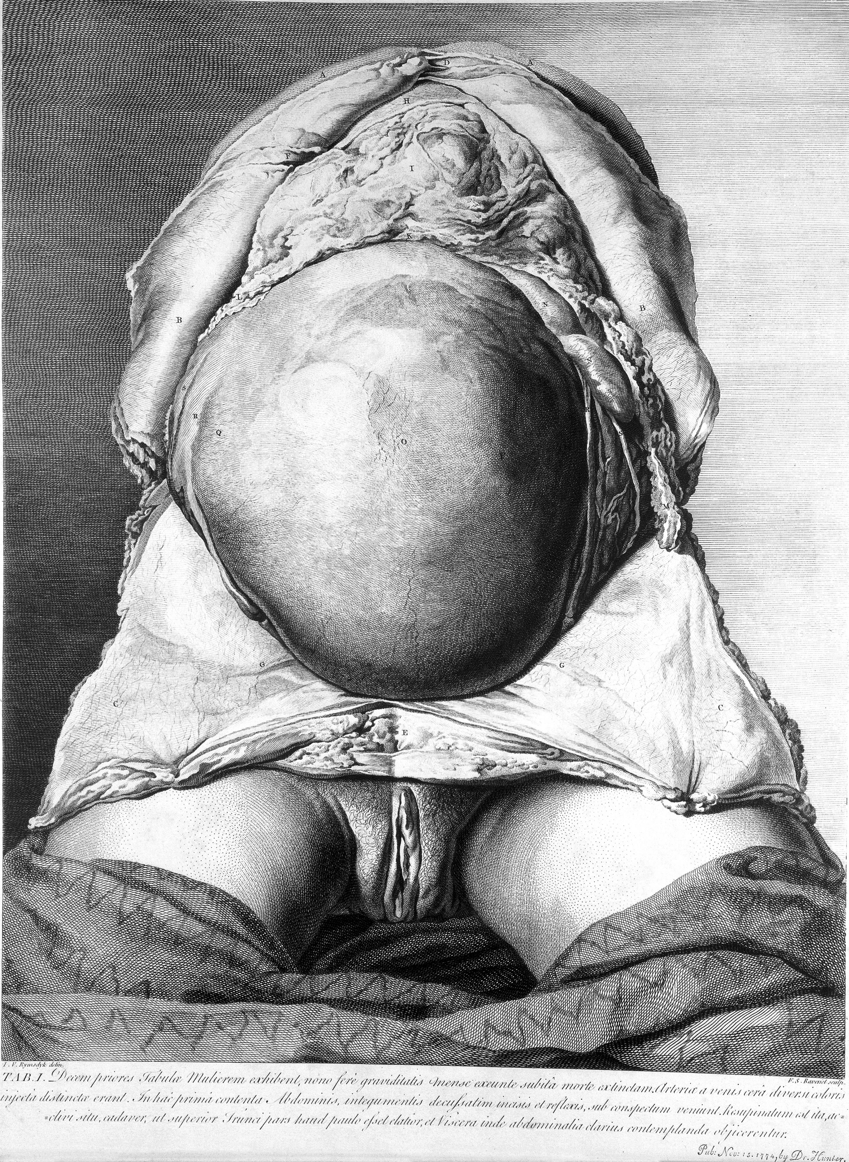 file the anatomy of the human gravid uterus wellcome