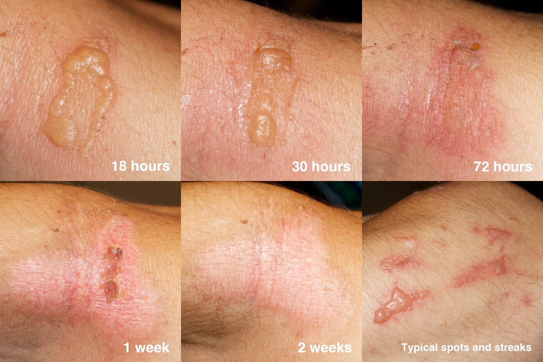Fytofotodermatitis - Huidarts.com